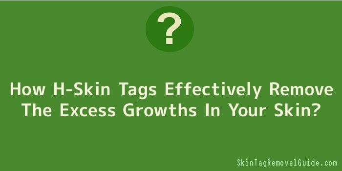 How H-Skin Tags Effectively Remove The Excess Growths In Your Skin