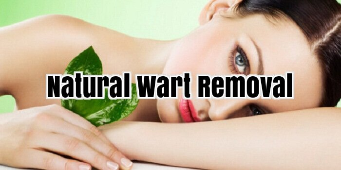 Natural Wart Removal